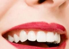 Costo pulizia denti