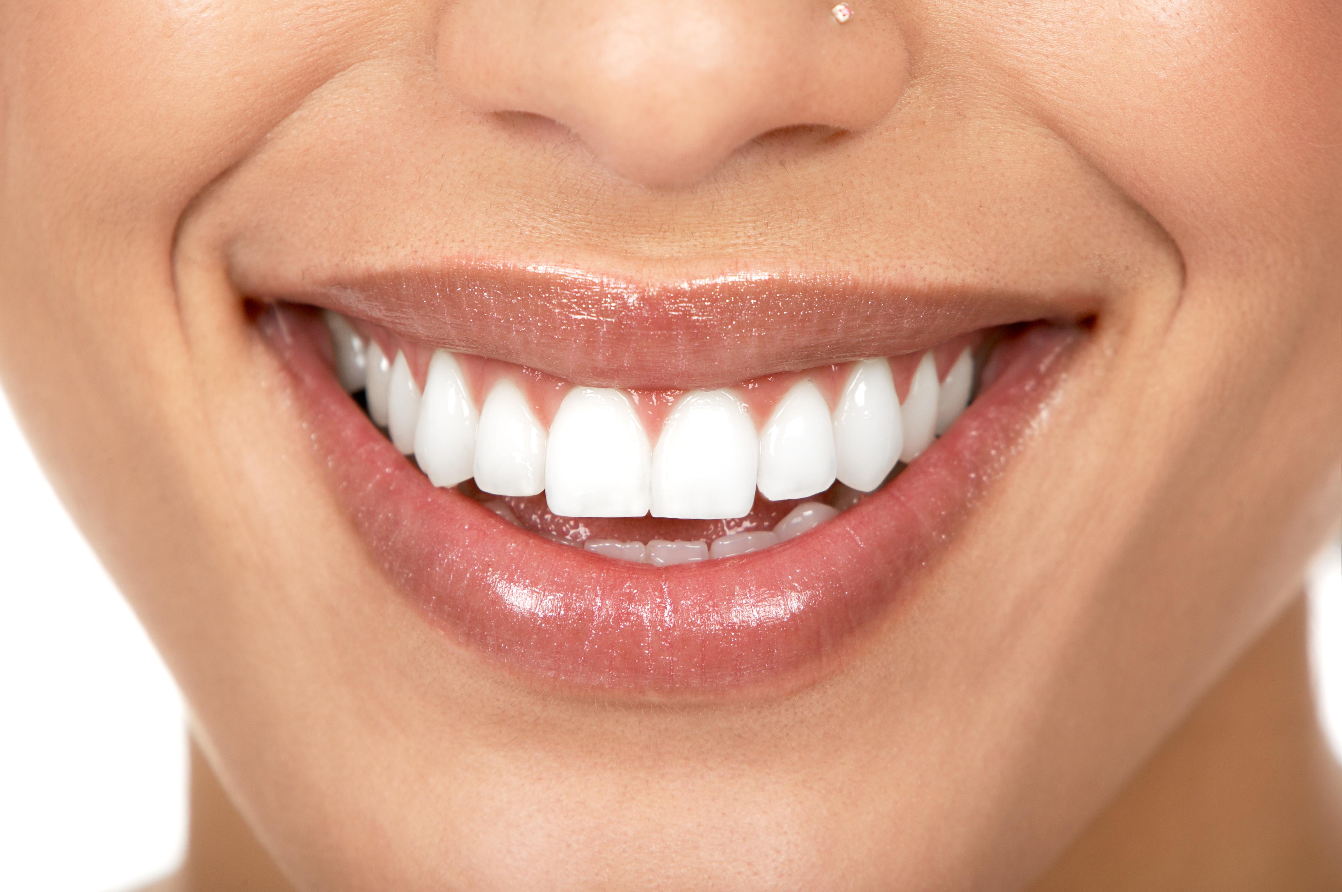 Come avere un bel sorriso, l'importanza dell'igiene orale