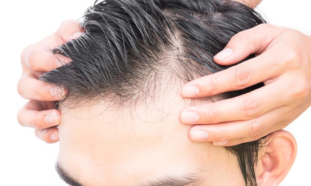 Alopecia areata, le cause e i sintomi