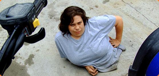 Rose Siggins: la donna con metà corpo