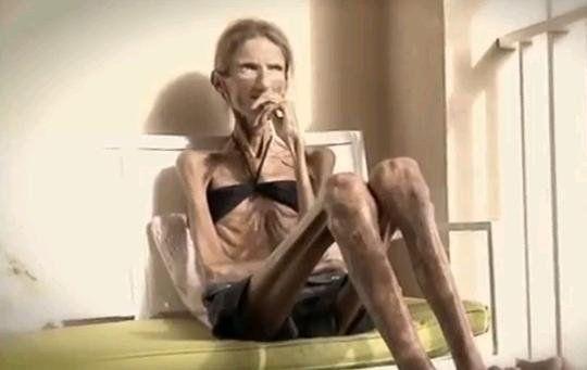 La donna più anoressica al mondo: pesa 25 kg. Foto