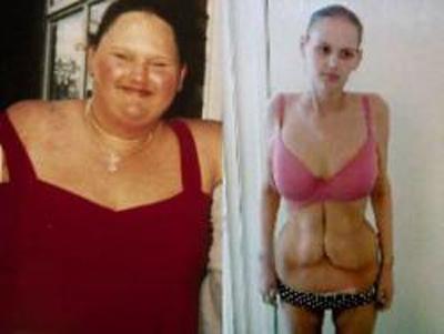 Donna perde 130 kg: ora in pericolo di vita