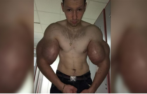 Braccio di Ferro esiste davvero: ma le sue braccia stanno andando in necrosi