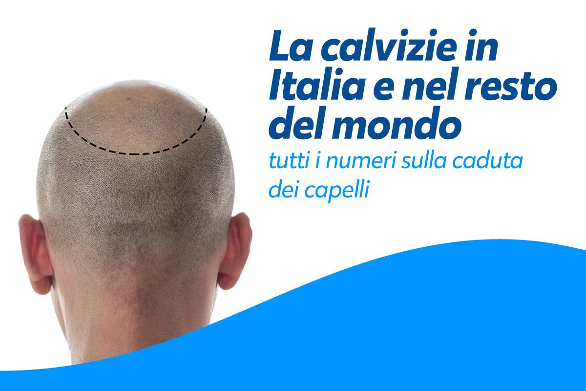 Alopecia androgenetica: cosa bisogna sapere e quali sono le possibili cure